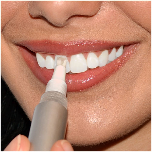 Teeth Whitening Pens Teeth Whitening Pen Tooth